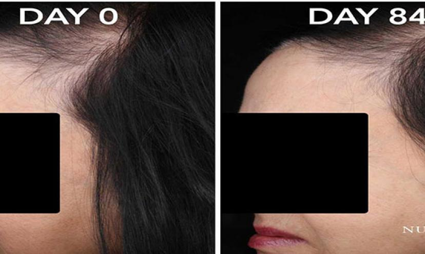 Regain Confidence and Healthy Hair with FDA Approved NUTRASTIM!